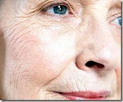 rugas acupuntura estética curitiba