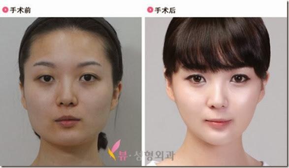 korean-plastic-surgery-45