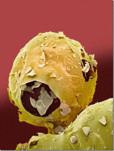 food-electron-micrograph-2