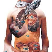 Efeitos do Cigarro no Organismo (3.ª parte)