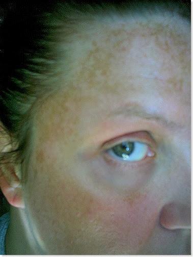 melasma-pigmentation