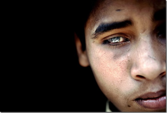 Salman, 13, a child presenting a severe neurological disorder and blindness, is portrayed in his home in the impoverished Arif Nagar colony, Bhopal, Madhya Pradesh, India, near the former Union Carbide (now DOW Chemicals) industrial complex.