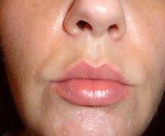 skin before Rodan   Fields Acute Care Regimen_4
