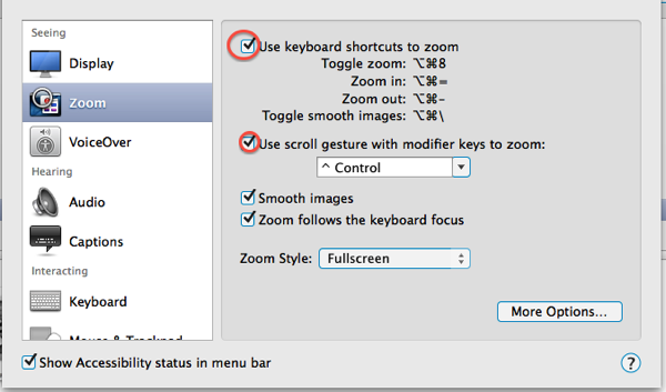 My Zoom options on my mac