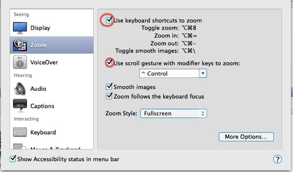 My Zoom options on my mac