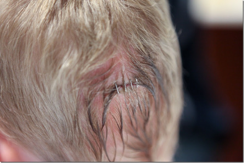 Alex gets 4 staples in the back of his head (12)-small