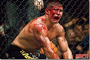 UFC_BLOOD MMA VIOLENCE