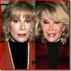 What Joan Rivers Can Teach Us About Cosmetic Surgery - Beauty and Personal Grooming