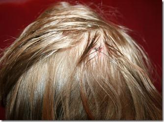 2011-10-14 Stitches (2)