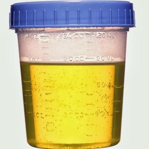 orina almacenada - descubrimiento del fosforo