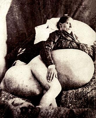 Paciente con distensión abdominal