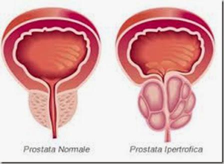 iperplasia prostatica benigna cane