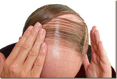 como evitar la caida del cabello1