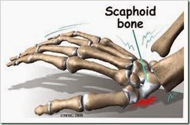 scaphoid