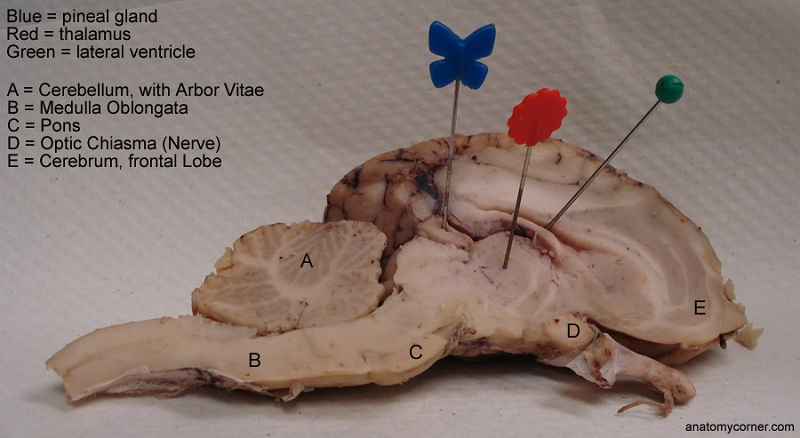 Sheep Brain Dissection Worksheet – Sheep Brain Dissection Worksheet