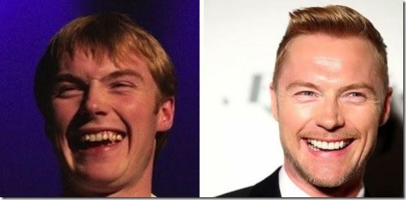 missing-teeth-funny-033