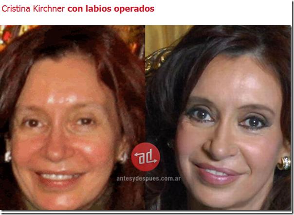 Cristina Kircher labios operados