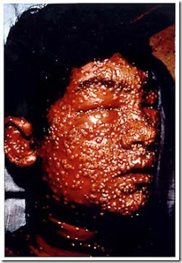 smallpox1 11