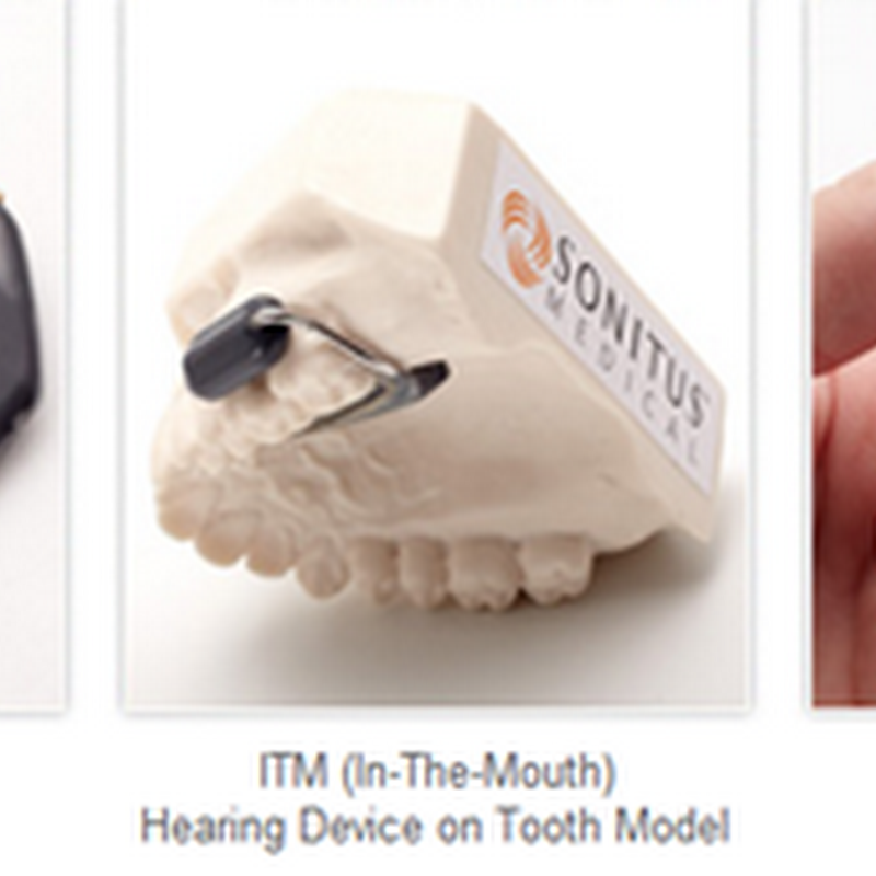 SoundBite Hearing System Receives FDA Clearance for Hearing Device That Attaches to Your Teeth