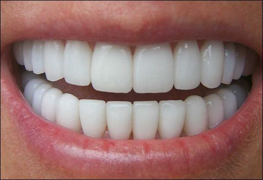 zubi zub ulibka zdorovie zubi zubi ulibka belie zubi zubi cheloveka chistit zubi 68970192115