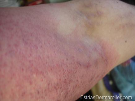 Estrias do brao esquerdo brancas. Aps o tratamento com derma roller, ficaram vermelhas, assim como toda a regio.