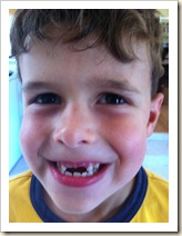 missing front tooth
