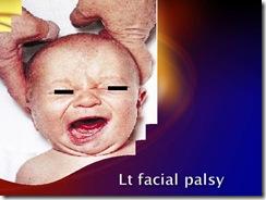 lt facial palsy