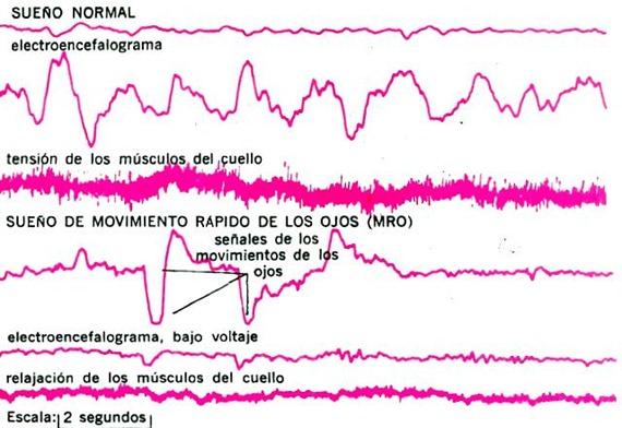 Electroencefalograma de sueño