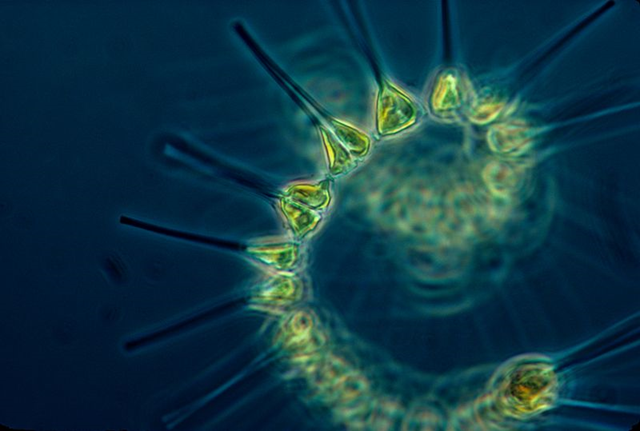 Phytoplankton comprise the foundation of the oceanic food chain. Photo: NOAA MESA Project / Wikipedia