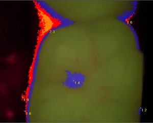 Molar Image 3.jpg