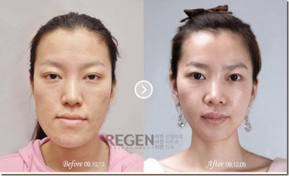 korean-plastic-surgery-3