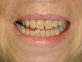 Patient A before whitening