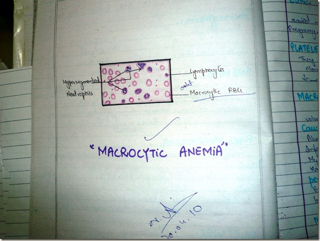 macrocytic anemia diagram histopathology