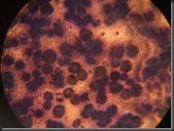 AML high resolution histology slide tsnaps