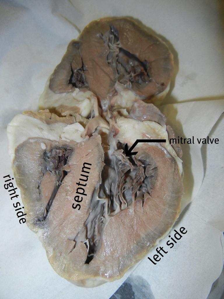 heart_chambers_closer_labeled.JPG