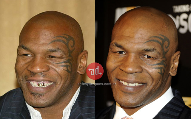 New teeth of Tyson
