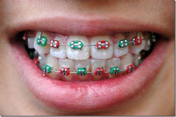 fake-braces-asia-trend-16