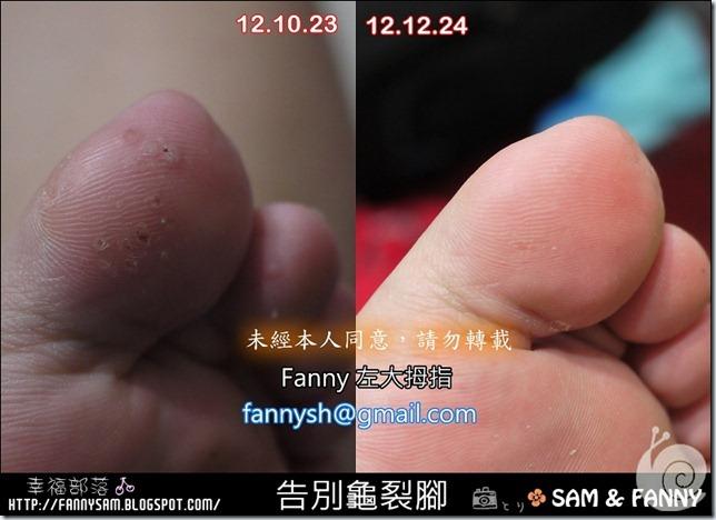 blog-Fanny大拇指