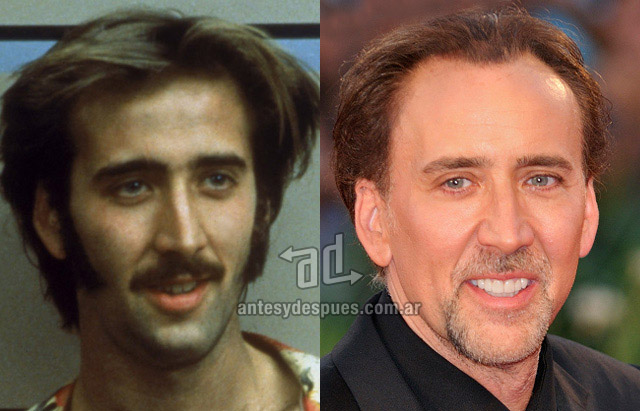 Hair Loss Before & After of  Nicolas Cage
