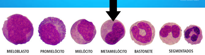 Granulopoese Neutrofílica
