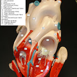 heart_model_04_answers.jpg