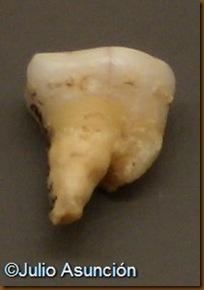 Molar humano de Alkerdi - Urdax - Museo de Navarra