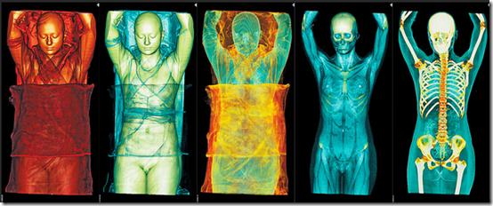 Des visions fascinantes du corps humain