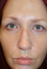 skin after Rodan   Fields Acute Care Regimen_3
