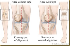 taping-knee-malalignment