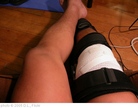 'my knee in a brace' photo (c) 2005, D.L. - license: http://creativecommons.org/licenses/by-sa/2.0/