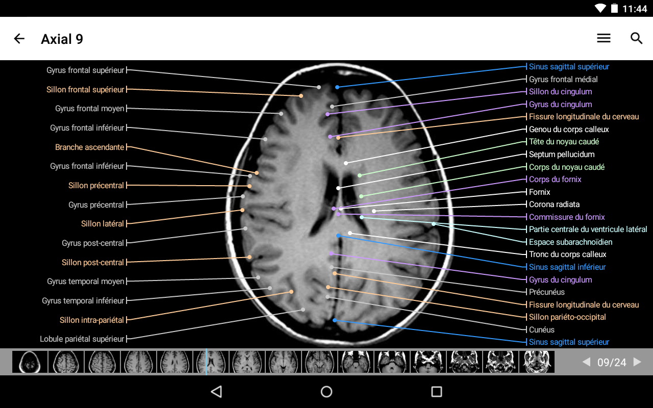 IMAIOS e-Anatomy Screenshot 14