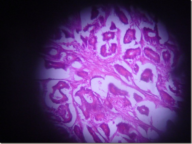 adeno CA histopathology
