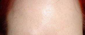 forehead at end of Derma Cellular Ultimate Vitamin C Booster use