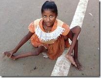 Victim of Polio